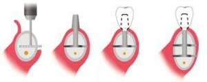 Какие этапы одномоментной имплантации?