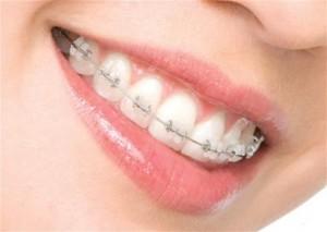 Брекеты на зубы - стоимость или качество?