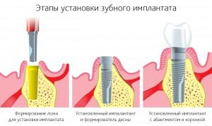 Дентальная имплантация зубов