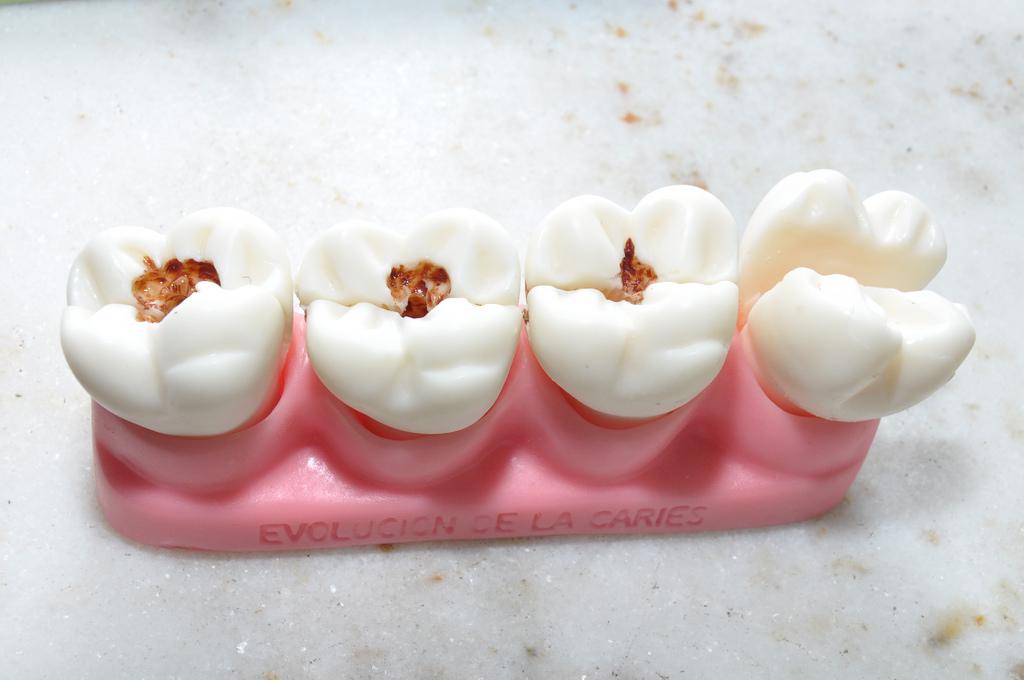 Как очистить зубы от кариеса в домашних условиях
