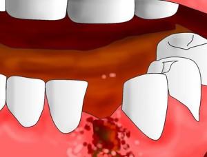 Кровотечение после удаления зубов