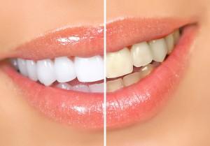 Как работает отбеливание зубов дома?