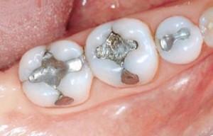 Зубные пломбы. Общая информация.