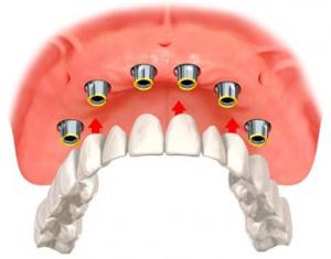 Какие зубные протезы выбрать?