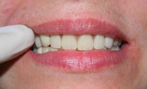 Как делают съемные зубные протезы?