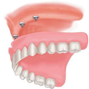 Съемные зубные протезы и когда их использовать?