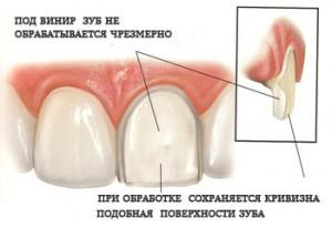 Виниры на зубы в Украине