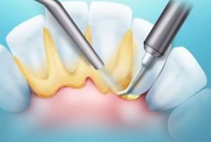 Удаление зубного камня и стоимость