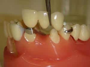 Зубные несъемные конструкции
