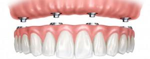 Какие зубные импланты лучше ставить?